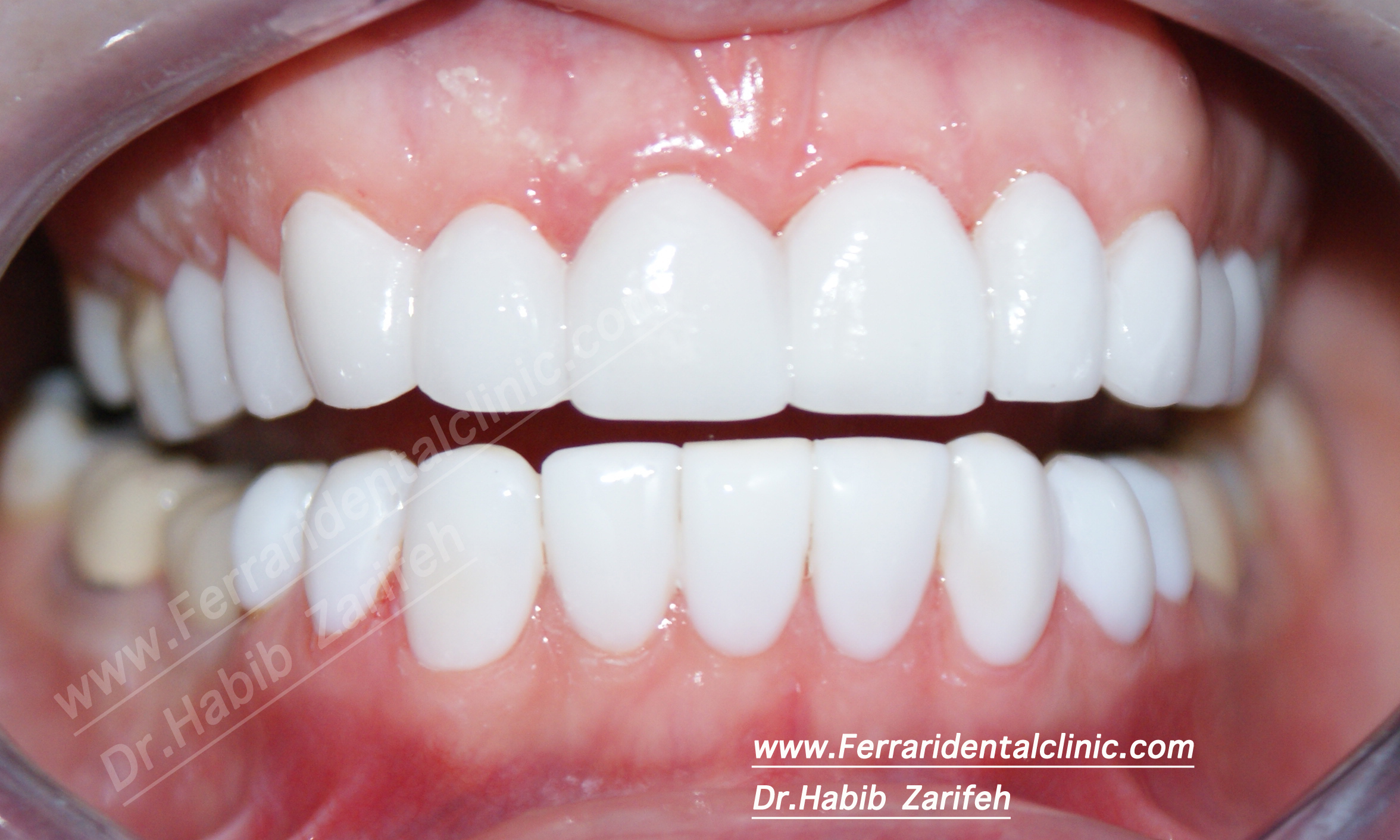 Hollywood smile cost by top elite dentists and dentalVeneers Cost Per Tooth