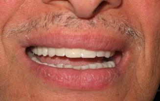 dental implants cost in Lebanon