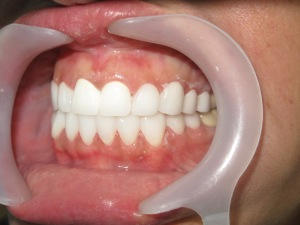 zirconium veneers lumineers