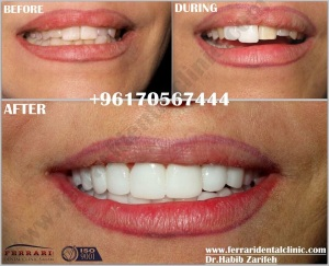 Lumineers Hollywood smile porcelain veneers in Beirut Lebanon