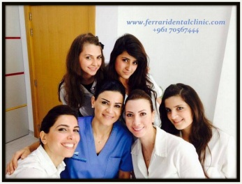 Hollywood smile veneers in Lebanon