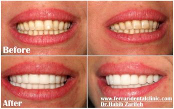 Have your Hollywood smile cost online with an immediate support at Ferrari dental clinic Lebanon