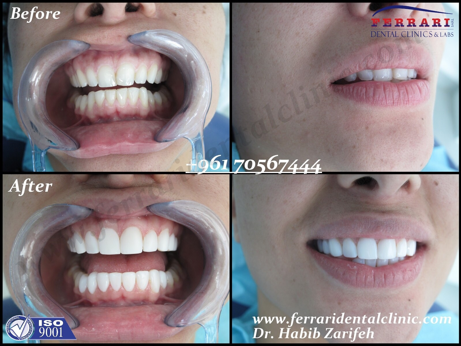 4 Zirconium Crowns Only Recommended For Full Hollywood Smile