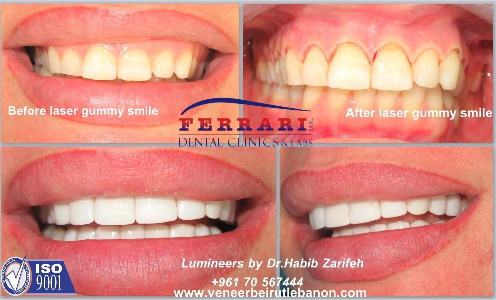 October 2014 Hollywood Smile Cost In Lebanon By Elite
