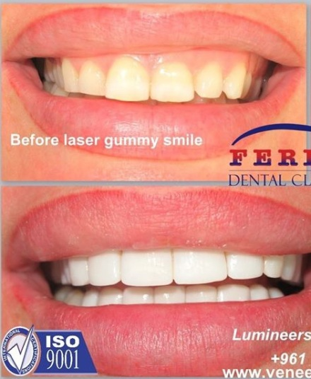 Hollywood Smile And Plastic Surgery In Lebanon Hollywood