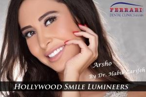 Hollywood smile Lebanon