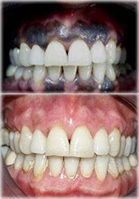 perio-melanin-removal2.jpg