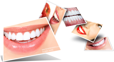 veneers-hollywood-smile-hp