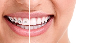 Invisalign-vs-Braces-Pros-and-Cons.jpg