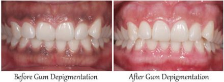 Gum-Depigmentation