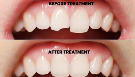 teeth reshaping