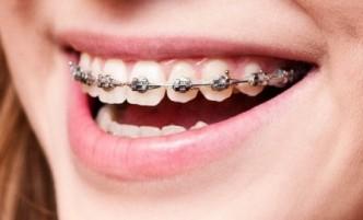Appareil-Dentaire-bague-en-métal-adulte-1024x621