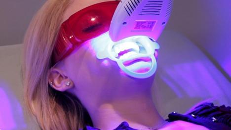 laser-teeth-whitening-54dc1e593b750