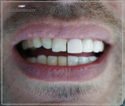 teeth 1B