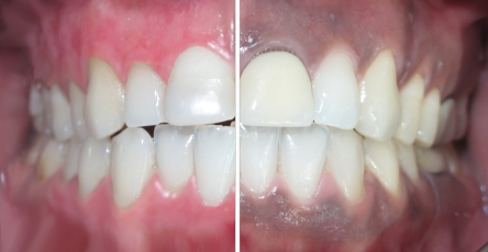 dark gum b and f