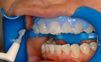 Lumibrite-Teeth-Whitening1