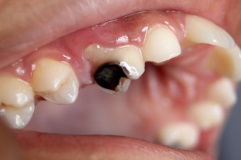 1200px-Dental_Caries_Cavity_2.JPG