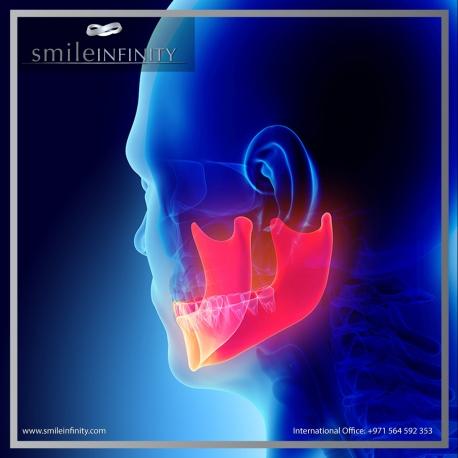 smile infinity tmj disorder 1