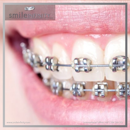 SMILE INFINITY TRADITIONAL BRACES