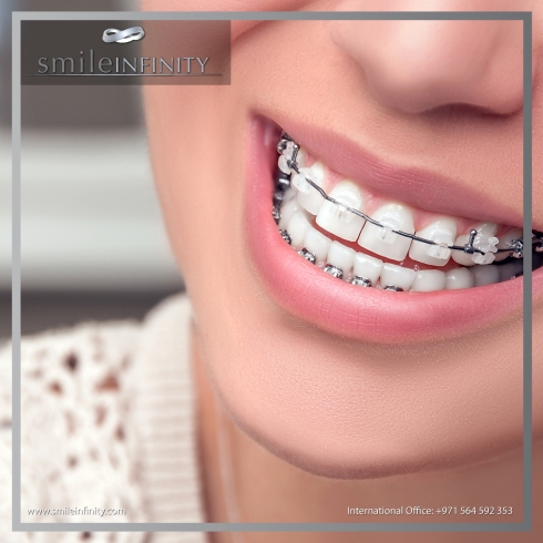 SMILE INIFNITY CLEAR CERAMIC BRACES