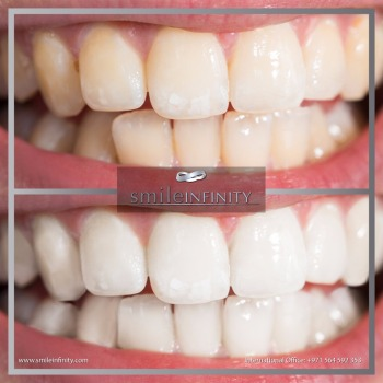 Laser-whitening-at-Smile-Infinity®